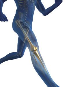 Popliteal Cyst Treatment LA