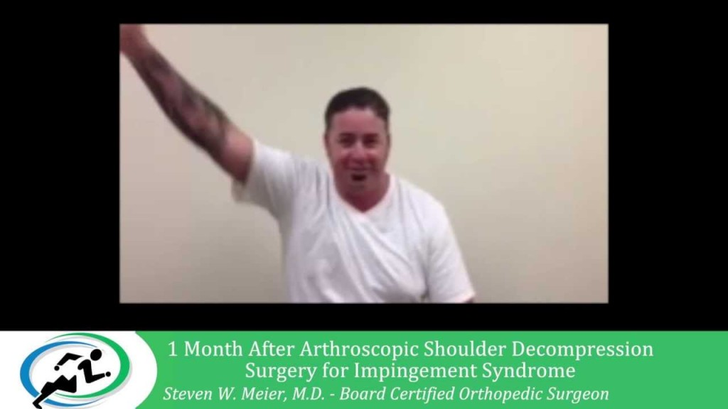 Arthoscopic Impingement Syndrome Treatment Los Angeles