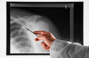 Beverly Hills Shoulder Arthroplasty