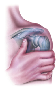 Glenohumeral Joint Prosethetic Treatment LA