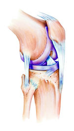 Bone Marrow Stem Cell Injections for Osteoarthritis