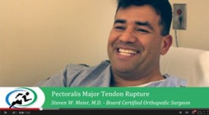 pectoralis-major-tendon
