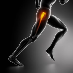 Los Angeles Orthopedic Hip Injury
